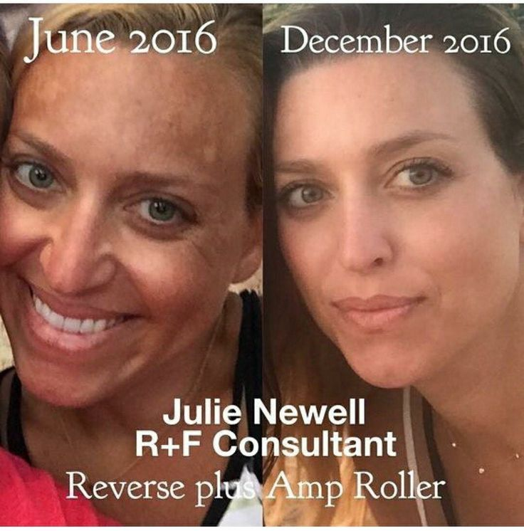 Rodan And Fields Reverse Before And After Sun Damage