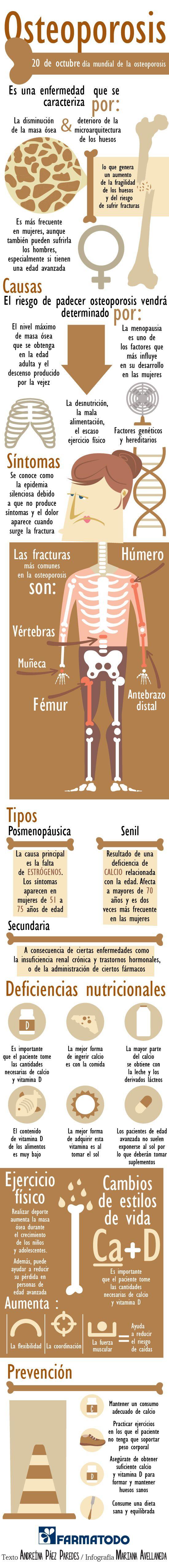 Te contamos todos los tips que debes tener e n mente para prevenir la osteoporosis.
