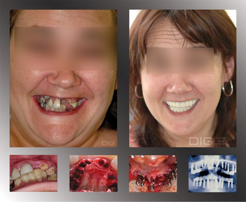 Dental MakeoversImage Search. 17 Best images about dental makeovers on Pinterest   Hollywood