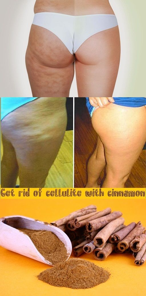CINNAMON is the magical spice that will help you get rid of CELLULITE!