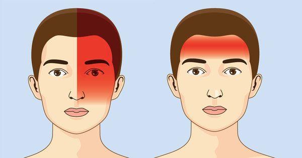 Sådan kan du lindre din migræne – ved at ændre kosten