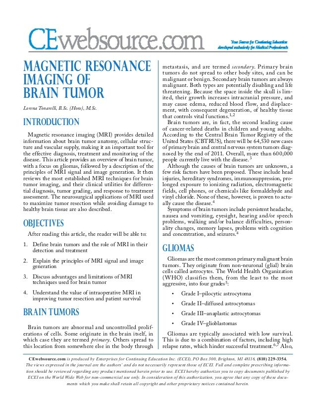 Magnetic resonance imaging (MRI) of #braintumor