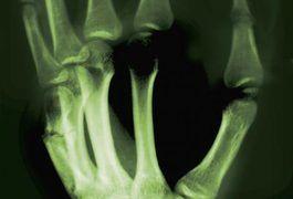 How to Read an X-ray With Rheumatoid Arthritis   LIVESTRONG.COM
