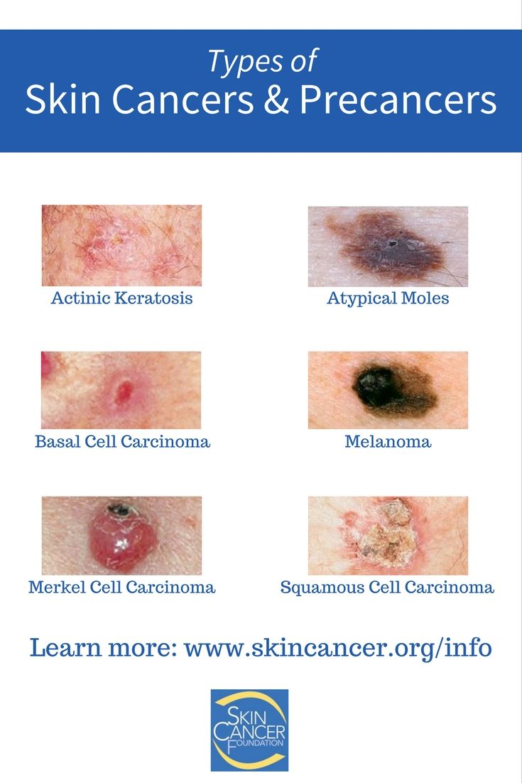 233 best Cancer Information and Resources images on ...