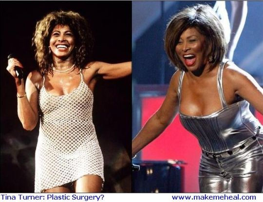 Tina Turner Before And After Celebrity Face Lift Before