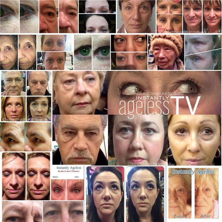 Jeunesse Instantly Ageless Wrinkle Line Eye 14 Sachets (2 Stripes) Free Shipping #Jeunesse