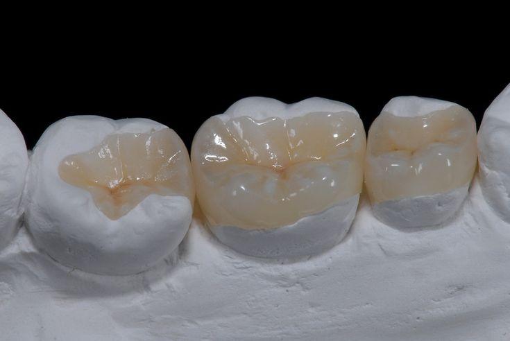 #LakeWorth #Florida #Dentist, health, Dr. Suarez #Cosmetic