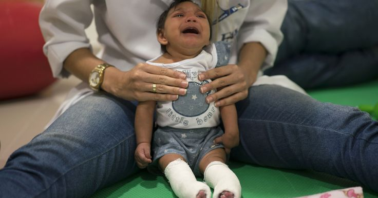 Colombia reports 32 cases of Zika-linked birth defects