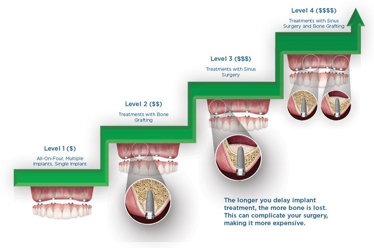 How much do dental implants cost dental implants cost