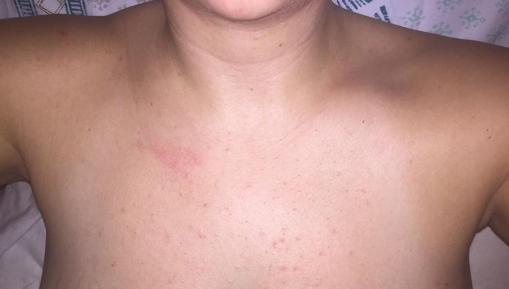 [Acne] Recommendations for moisturizers for shoulders/chest? Derm says I have both comedonal acne and dry skin bumps (pilaris keratosis). More info in comments. #chestacne