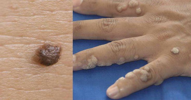 Incrível! Tem verrugas e não sabe como remover elas? Aprenda algumas técnicas aqui! - # #CascadeBanana #verrugas #vinagredemaça