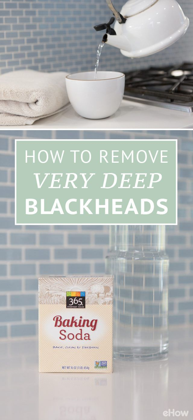 Deep blackheads usually require a trip to the spa or to a dermatologist, but try this home remedy first! You'll need an exfoliating facial cleanser, baking soda, mineral water and a tea pot. | Skin Care Tips