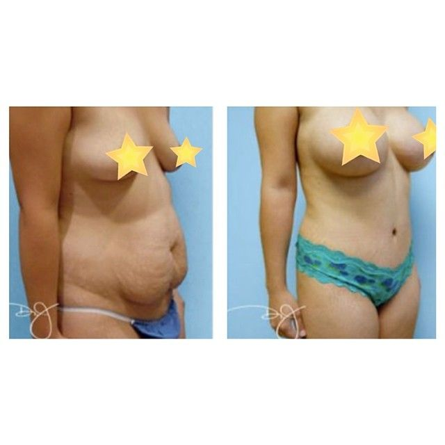 Weight Loss After Pregnancy Stretch Marks
