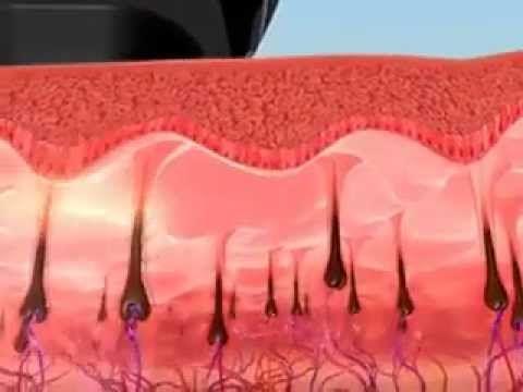 Dauerhafte Haarentfernung, permanente Haarentfernung, Haarentfernung intim, Haarentfernung Laser | Bodyesthetic