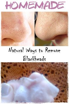 Remove Blackheads in a Natural Way