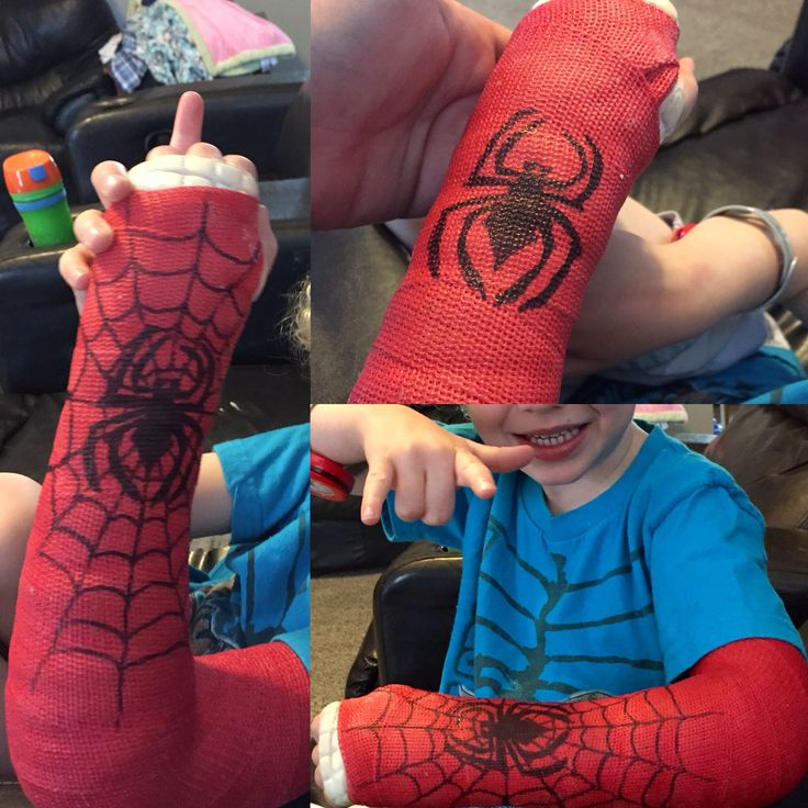 Cool arm cast. Spider-Man. Sharpie decorated. Broken arm. Decorated cast.