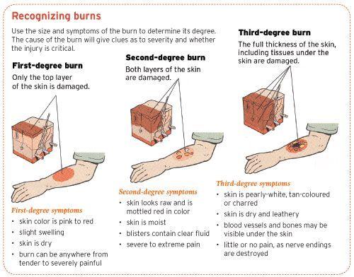 degree burns chart