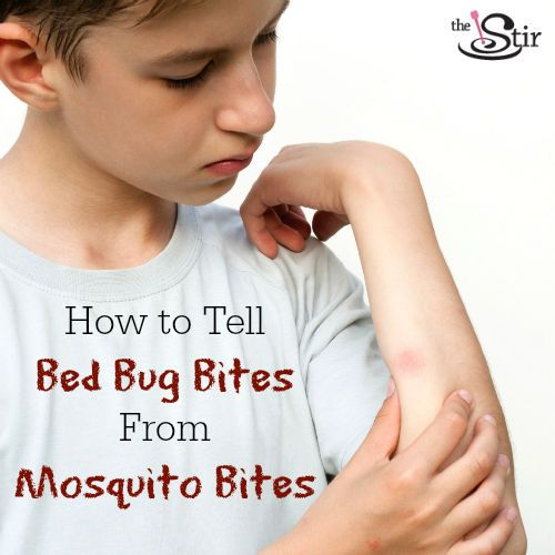 Mosquito Bites vs. Bed Bug Bites: How to Tell the ...