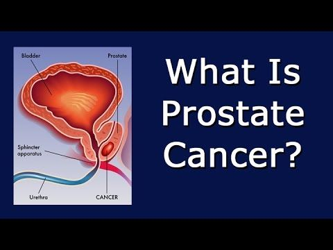 What Is Prostate Cancer? - WATCH VIDEO HERE -> http://bestcancer.solutions/what-is-prostate-cancer    *** what is the cause of prostate cancer ***   Links to related videos: Prostate Cancer Causes BPH Prostate Prostatectomy Prostatitis Signs Of Prostate Cancer Transcript: I'm producing this video on the prostate cancer because it has recently been diagnosed in someone in my family. When...