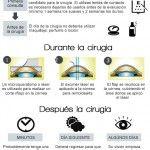 Cirugia Laser de Ojos Lasik en  Monterrey, Okumed