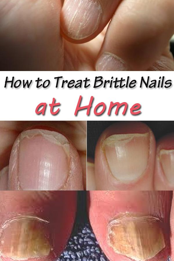 Nails show our general health, just like our hair does. Brittle nails translate into a deficiency, most like iron, Vitamin B or zinc deficiency. It is important to keep them strong and healthy and there are ways to do this at home. I have heard about lots of natural treatments for brittle nails and lots…