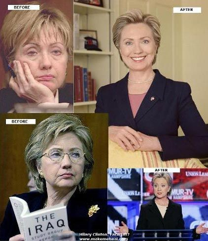 Hillary Clinton Plastic Surgery Picture                                                                                                                                                      More