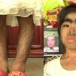 Ada suatu hal yang anah sudah di derita oleh sang gadis belia ini. Bernama Xiaoling, gadis yang kini masih berusia 8 tahun tersebut sudah di ketahui telah menderita penyakit langka yang sudah membuatnya semakin aneh dan mengerikan. Bagaimana tidak, jika di lihat anda pastinya mengerti adanya suatu bulu yang sudah memenuhi di sekujur tubuhnya dengan sangat lebat. Dari kondisi tersebut membuat sang gadis yang di ketahui berasal dari Guangxi, China ini, telah menderita secara psikologis.