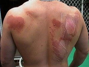The Homestead Survival | Home Remedies For Abrasions ( Road Rash ) | http://thehomesteadsurvival.com