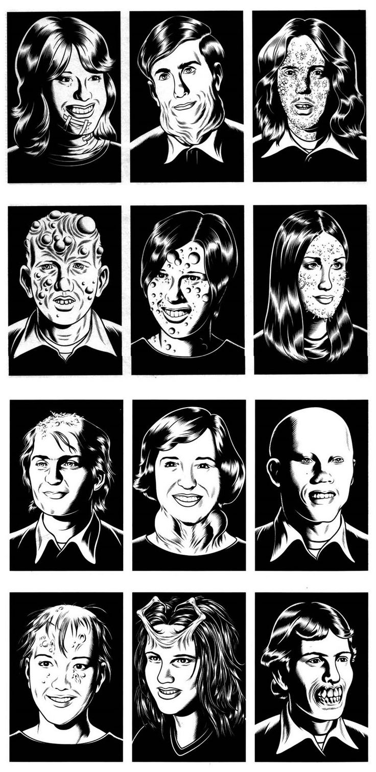 Charles Burns http://www.fantagraphics.com/charlesburns    Black Hole