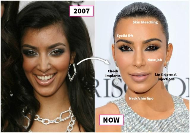 Sisters Kardashian Before And After Plastic Surgery