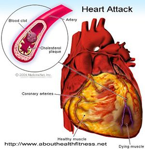 Heart attack usually happens when a blood clot develops in one of the blood vessels that lead to the heart muscle. A person who is having a heart attack usually feels the pain in his/her chest first. A heart attack is a medical emergency that must be quickly addressed by conventional medicine.