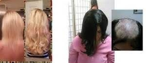 women hair loss before and after - Provillus natural hair regrowth solutions treat thinning hair. Contains minoxidil 5% which cures alopecia areata, androgenic, pattern baldness. Provillus Natural Hair Growth Treatment, Minoxidil 5% For Alopecia Hair Loss www.provillushair...