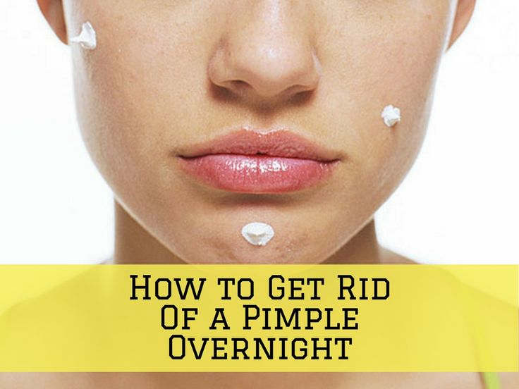 Best 25 pimples overnight ideas on pinterest clear acne how to get rid of acne overnight fast home treatment for scabbed and cystic pimple ccuart Gallery