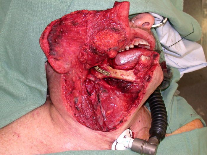 """This is the kind of surgery you might expect to scrub on for oral cancer treatment from using snuff, """"dip"""" or chewing tobacco. There is an article that goes along with this, and several more pictures, pre-op, intra-op and post-op. http://www.outdoortexan.com/mycancer.htm Use the link I have provided, as the ones under the photo only take you to the individual photo, not the article."""