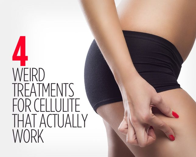 4 Weird Treatments for Cellulite That Actually Work http://www.womenshealthmag.com/beauty/weird-cellulite-treatments?utm_source=zergnet.com&utm_medium=referral&utm_campaign=zergnet_242489&cid=partner_zergnet