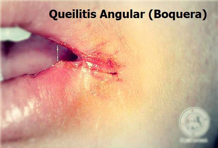 Clasificación y Formas Clínicas de la Queilitis Angular   OVI Dental