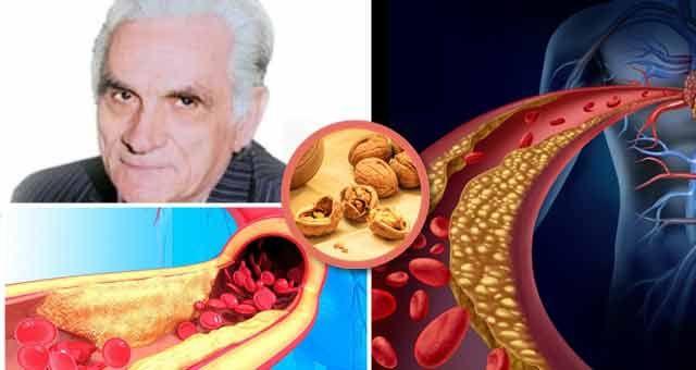 """Un articol de Mihaela Iliescu  Valeriu Popa, marele nostru terapeut, afirma: """" Nu exista decat o singura boala: sange stricat"""".  Degeaba ingrijim ficatul, rinichii, plamanii si alte organe, daca nu ingrijim """"conductele"""", adica vasele de sange. Ingrosarea si rigidizarea peretilor arteriali se numeste ateroscleroza. Este cauza principala a imbatranirii, a declansarii bolilor cardiovasculare, …"""