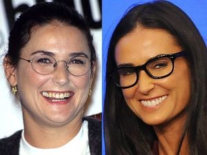 Top 10 Celebrity Cosmetic Dental Surgery Before and After Photos of Demi Moore
