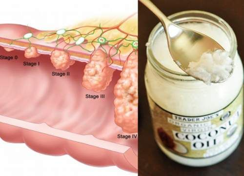 Coconut Oil Kills Colon Cancer Cells, Study Shows! Although coconut oil has been found to possess anti cancer properties, many other health benefits have also been established through research. Coconut oil kills many types of bacteria, viruses, fungi, and parasites.