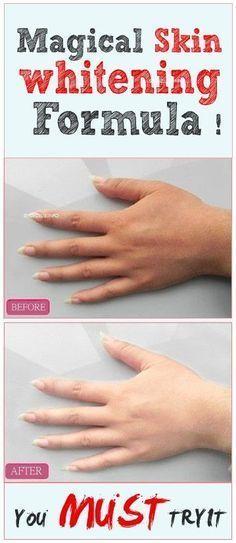 Meine Damen, Sie MÜSSEN diese wundersame Formel zur Hautaufhellung ausprobieren !. #Hautaufhe…
