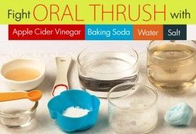 Home Remedies for Oral Thrush How to cure your yeast infection symptoms fast with natural remedies.