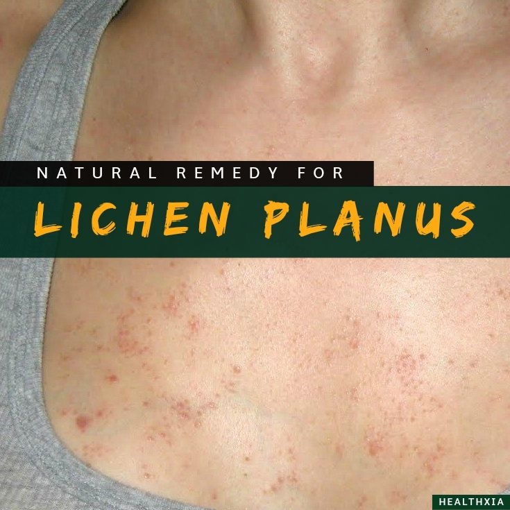 Lichen planus is a condition that is inflammatory in origin. It affects the arms, legs, scalp, mouth and mucous membranes of the vagina. Its exact cause still remains something of a mystery, although it is understood that it is not infectious, doesn't run in families, and cannot be passed to others. It is a non-specific inflammatory lesion.