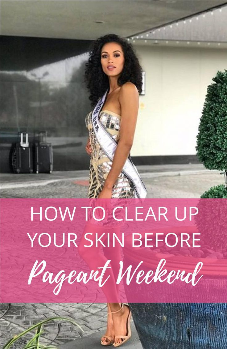 How To Clear Up Your Skin Before Pageant Weekend We spend so much time prepping and preparing for a pageant, but there are some things that you just can't prepare for! What do you do when your skin starts to break out and you have a pageant coming up? Click to discover our top tips to keep your skin clear before pageant weekend!