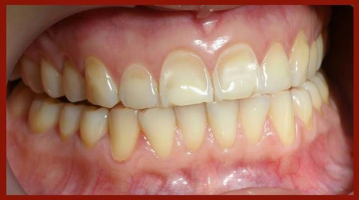 A erosão ácida dos dentes é um tipo de desgaste dental.     É definida como…