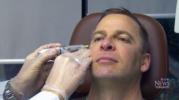 Dr. Torgerson tonight on +CTV News +CTV Toronto 6pm #plasticsurgery #men #trends #male #Botox #laser #filler #tv #news
