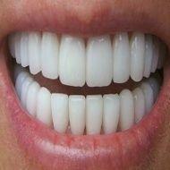 DENTI bianchi in 10 minuti! I dentisti non lo sveleranno mai!