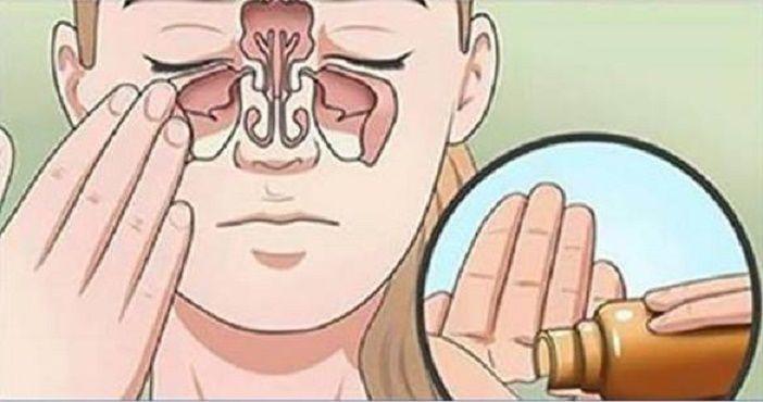 Dê adeus à rinite e sinusite com estes 8 remédios caseiros | Cura pela Natureza