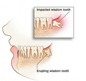 Wisdom teeth are the last of your teeth to come in, or erupt, through the gums. Sometimes a wisdom tooth becomes impacted.