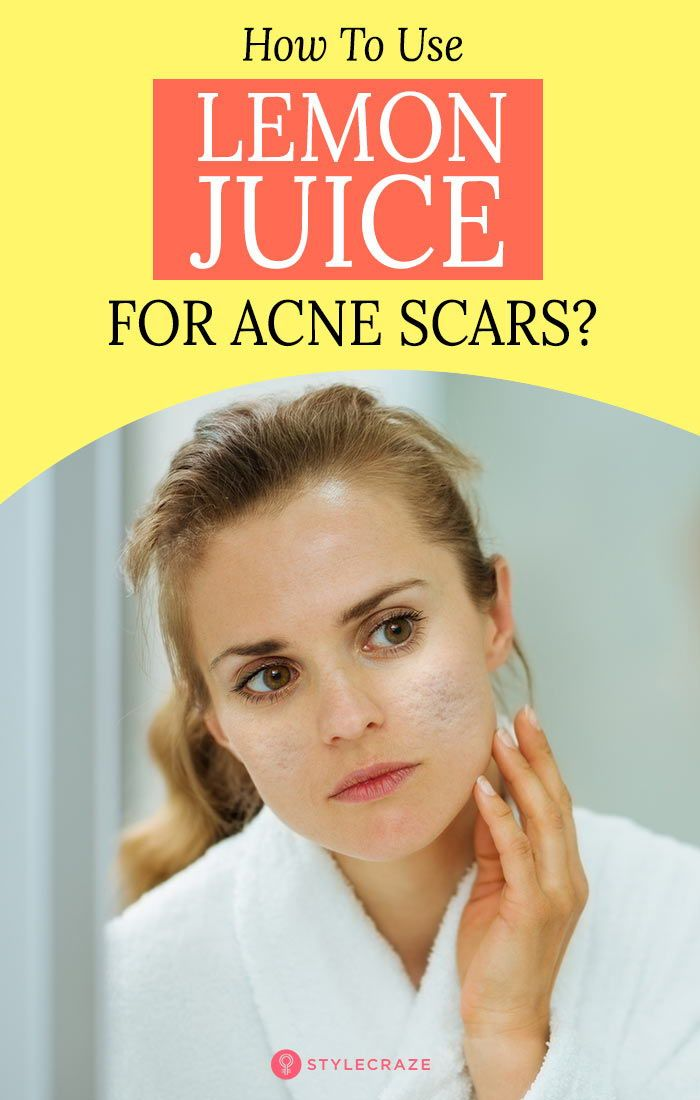 How To Use Lemon Juice For Acne Scars?