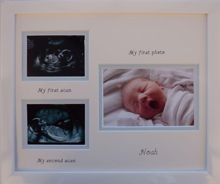Double scan, my first photo personalised photo frame - new baby boy
